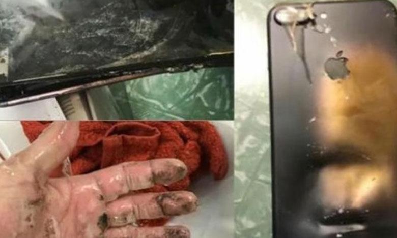 وزارة التربية الوطنية تتكفل بمصاريف علاج تلميذ تعرض لحادث انفجار بطارية هاتفه