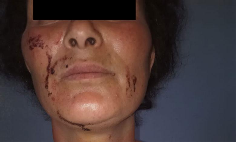 إيقاف زوج عنف زوجته ضواحي القنيطرة  بناء على تعليمات النيابة العامة
