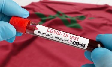 كوفيد-19: 468 إصابة جديدة و4 وفيات بالمغرب في 24 ساعة و9.372.198 استفادوا من التلقيح