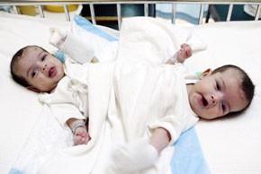 2 siamoises marocaines seront transférées à Ryad pour les séparer