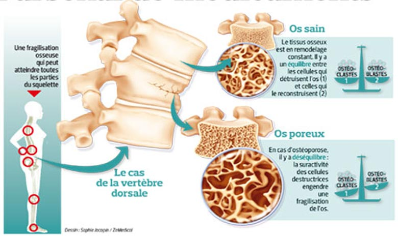 Entraînant une augmentation de la fragilité osseuse et du risque de fractures. L'ostéoporose est souvent considérée comme une maladie exclusivement féminine qui apparait au moment de la ménopause.    Ph : medecine.savoir.fr