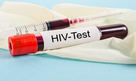 VIH: des chercheurs testent un nouveau traitement