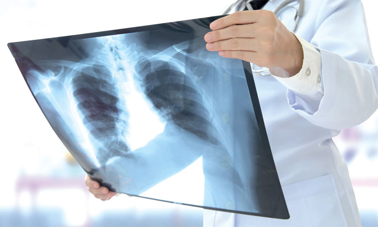 450 millions de dirhams pour le nouveau plan stratégique national de lutte contre la tuberculose
