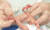 La prise en charge des bébés prématurés fait encore défaut au Maroc