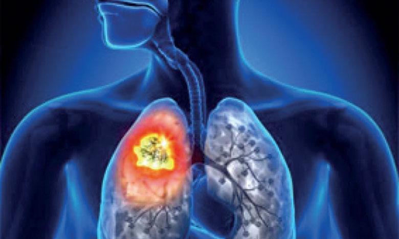 OMS : Il est temps d'agir pour mettre fin à l'épidémie !