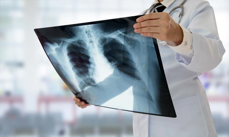 Ces décès ont, d'ores et déjà, bousculé l'industrie naissante de la cigarette électronique. Ph :  AFP