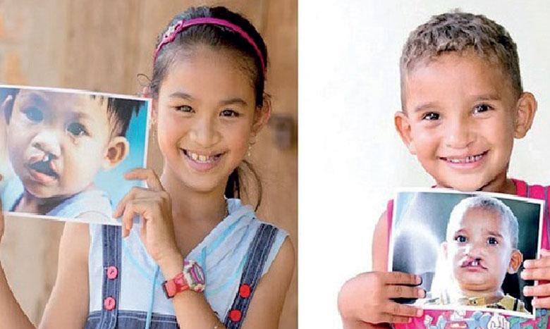 200 enfants ciblés par la mission chirugicale Operation Smile Morocco