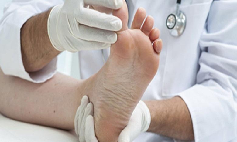 Le pied diabétique est la destruction des vaisseaux sanguins et des nerfs du pied, à cause de la haute concentration du taux de sucre dans le sang. Ph: DR