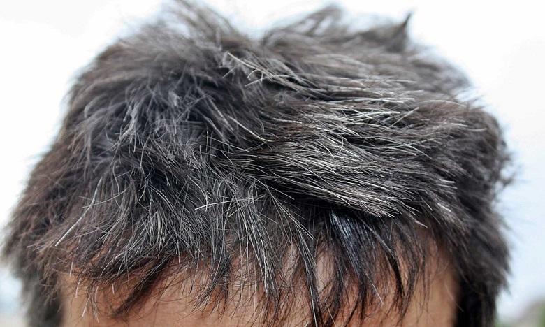Une étude démontre que le stress aigu est à l'origine de l'apparition des cheveux blancs. Ph: DR