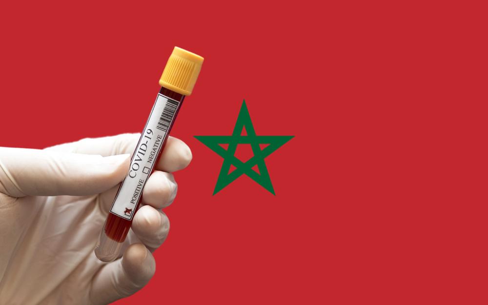 Covid-19 : 534 nouveaux cas de contamination en 24H, dont près de la moitié à Safi