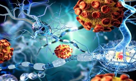 Le coronavirus est capable d'envahir le cerveau, selon une étude