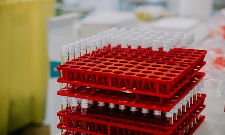 Vingt-huit millions de doses de différents vaccins contre le Covid-19 ont été administrées en Afrique, ce qui représente moins de deux doses administrées pour 100 personnes en Afrique, selon les chiffres de l'OMS. Ph : DR